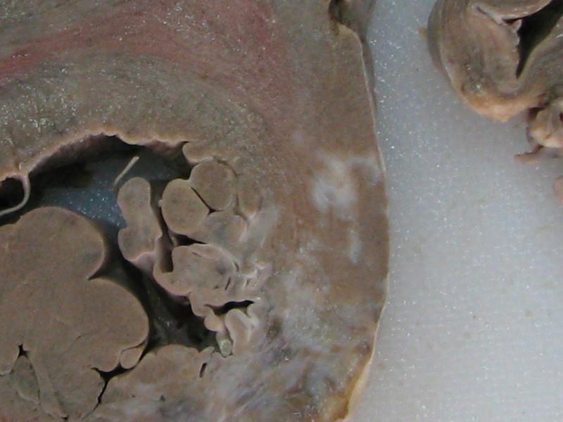 Patologie medicolegală